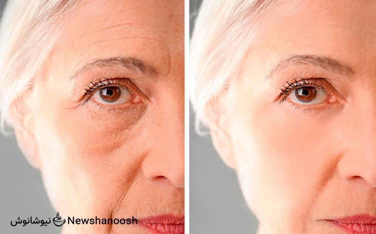 عکس سلفی قبل و بعد از مصرف دمنوش نیوشا